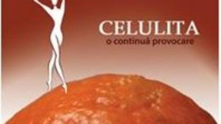 Cartea Celulita, o continua provocare – Adina Alberts (download, pret, reducere)