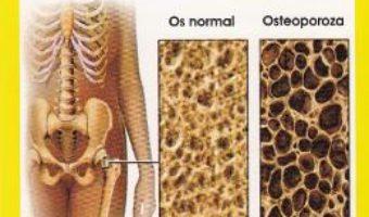 Cartea Osteoporoza – Tom Smith (download, pret, reducere)