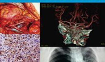Cartea De la simptom la diagnostic in practica medicala – Camelia Diaconu (download, pret, reducere)